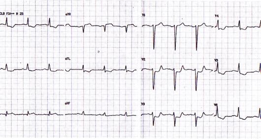 Viagra increased heart rate